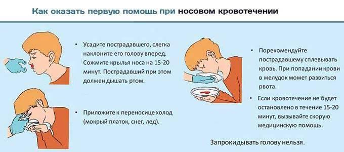 Причины и лечение кровотечения из носа у детей, первая помощь