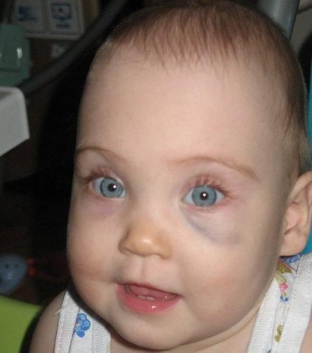 Синяки под глазами у ребенка: причины каких заболеваний
