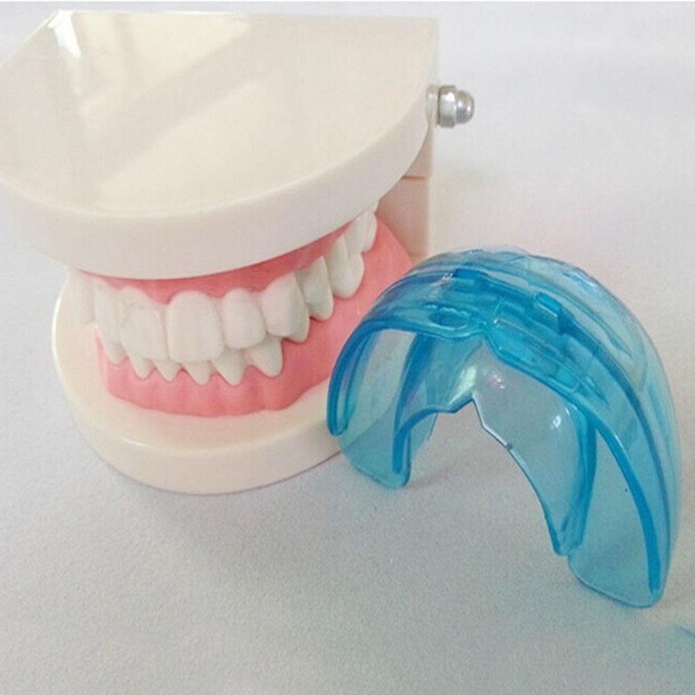 Ретейнеры – пластинки для выравнивания зубов у детей
