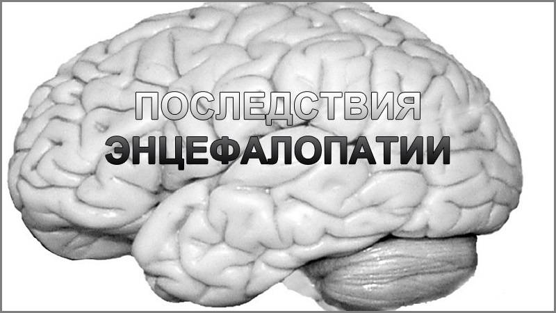 Резидуальные изменения головного мозга: что это, как лечить энцефалопатию