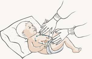 Колики у грудничка: как понять, что у малыша колики, что делать и как помочь?