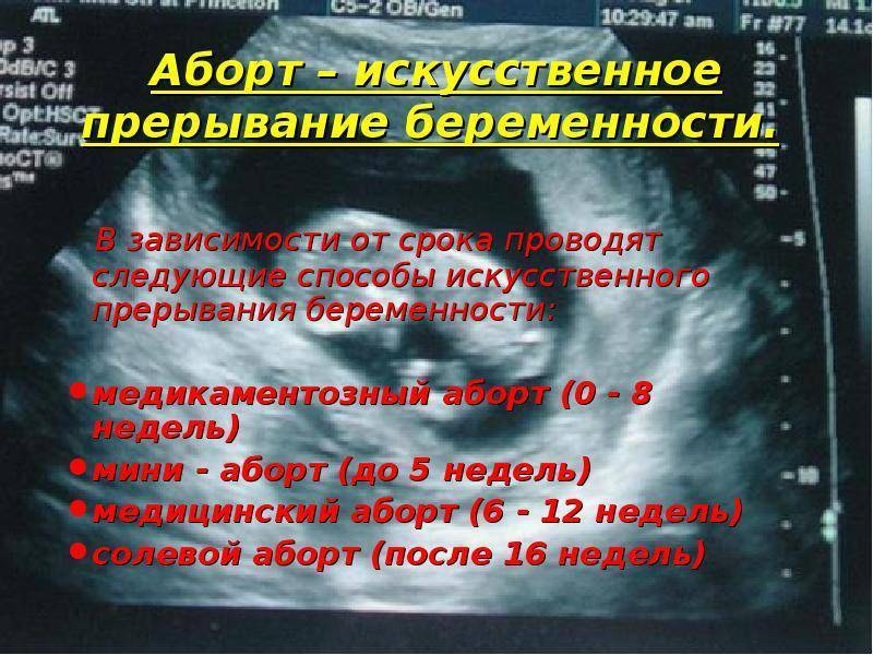 Сроки проведения аборта по неделям 7,8,9,10,12,3,4,9,5,10 и на других неделях