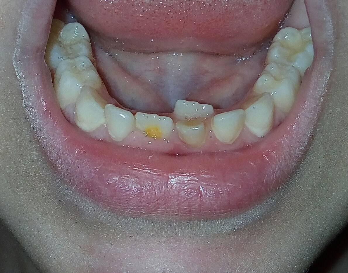 Почему у ребёнка жёлтые зубы и что с этим делать