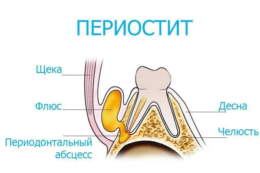 Флюс молочных зубов на десне у ребенка: что делать в домашних условиях, лечение