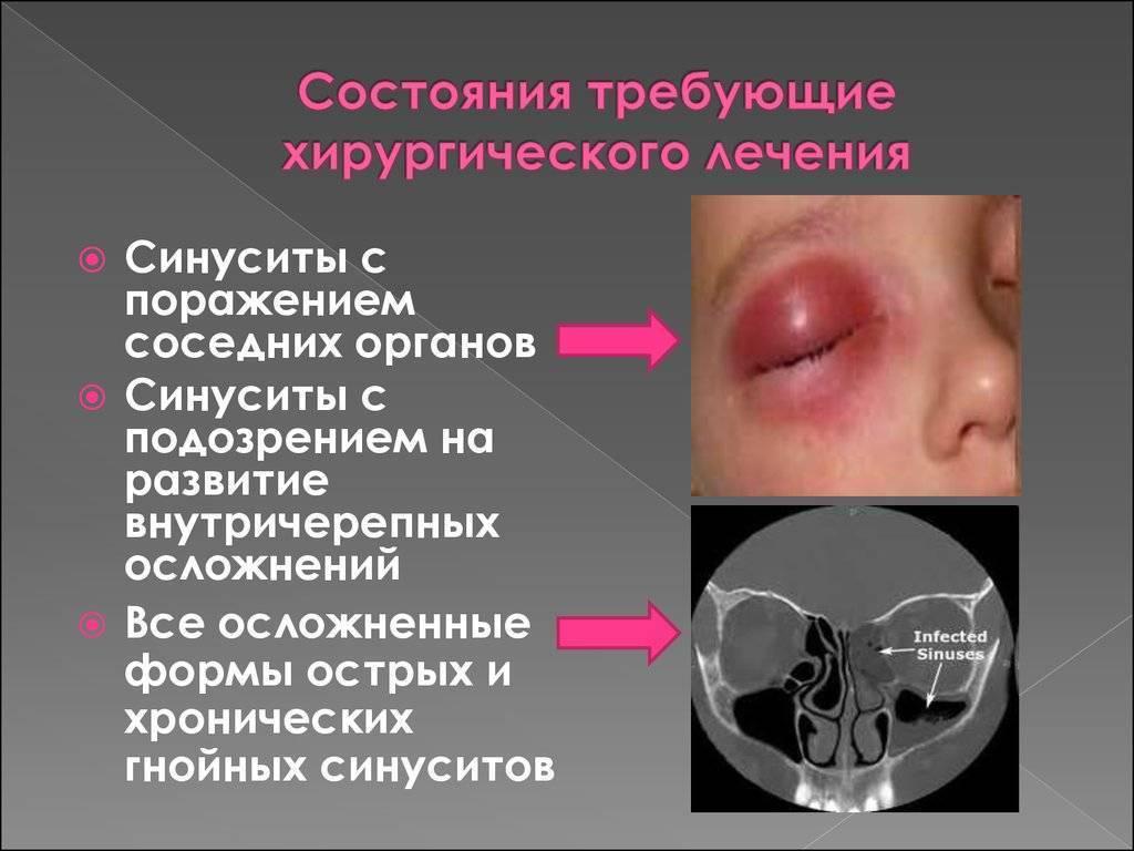 Эффективное лечение острого синусита