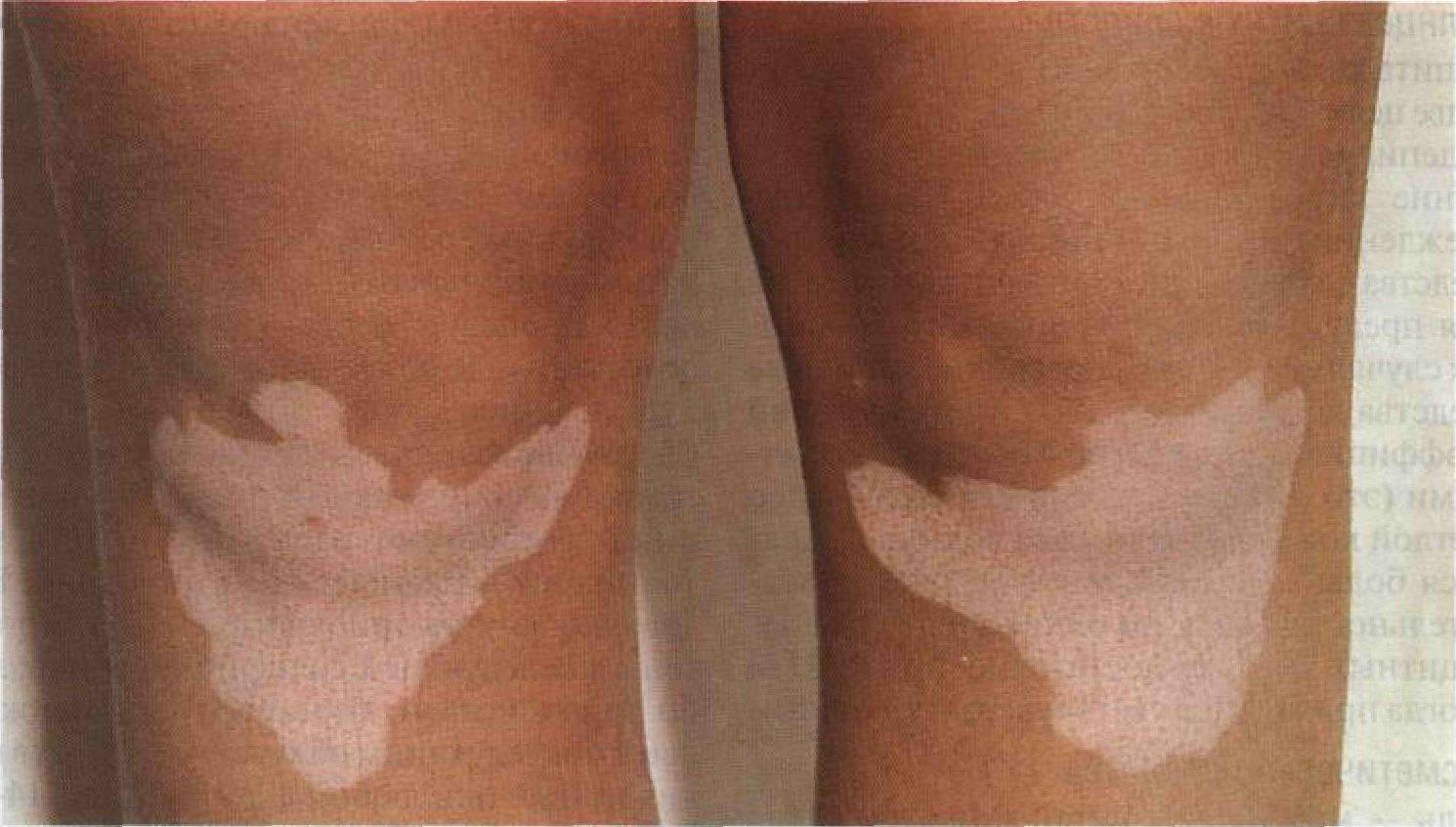 Белые пятна на коже - как называется болезнь, причины и лечение