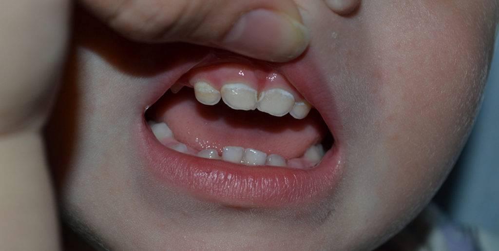 Бутылочный кариес у детей - стадии и причины развития