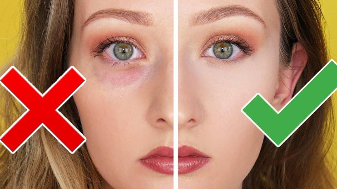"""Круги под глазами у ребенка: причины и методы лечения - """"здоровое око"""""""