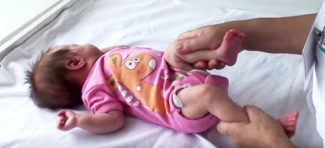 Гимнастика при дисплазии тазобедренных суставов у грудничков: упражнения для новорожденных, три этапа зарядки для детей до года, физиотерапия, видео с лфк | статья от врача