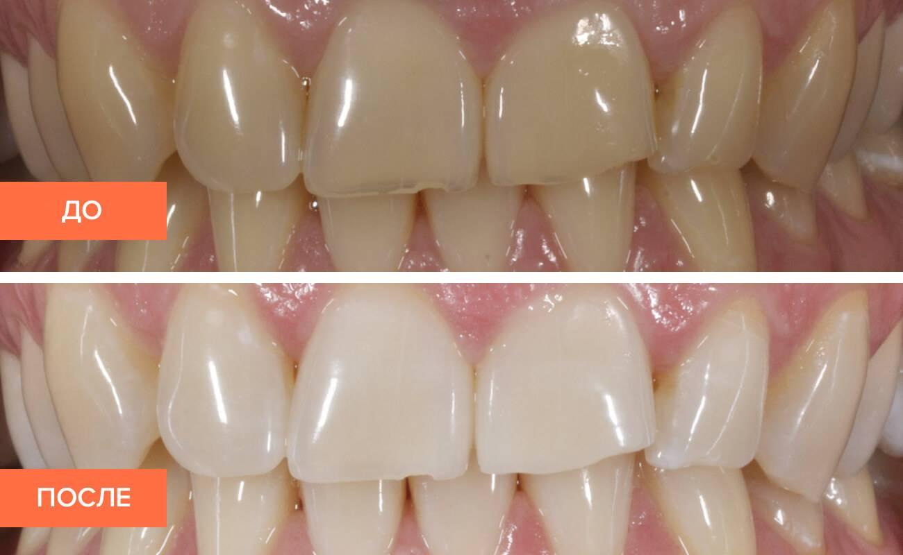 Фторирование зубов у детей комаровский — зубы