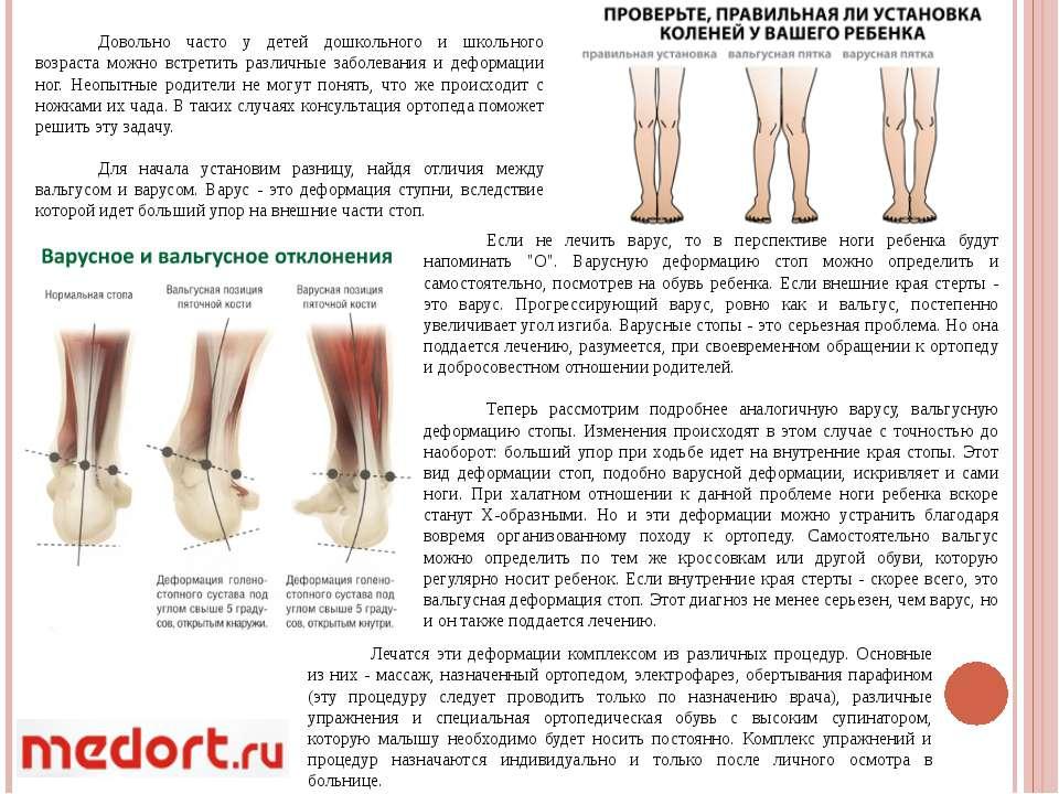 Вальгусная и варусная деформация стопы: причины нарушений и их лечение