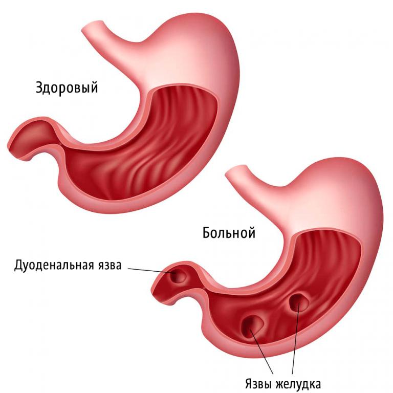 Симптомы и лечение язвы желудка и двенадцатиперстной кишки