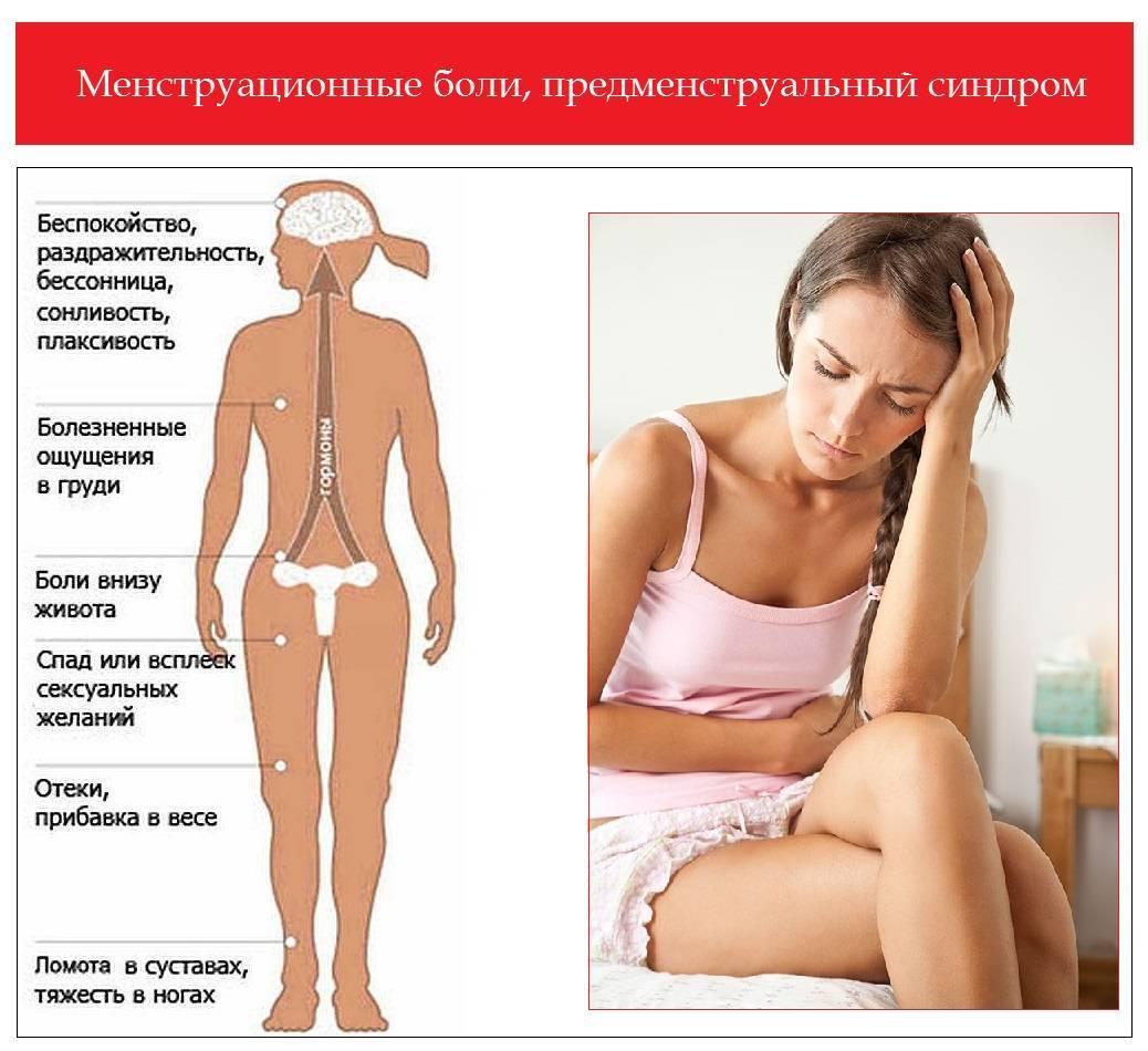 Почему во время месячных болит голова - причины, симптомы и лечение: что принимать при менструации?