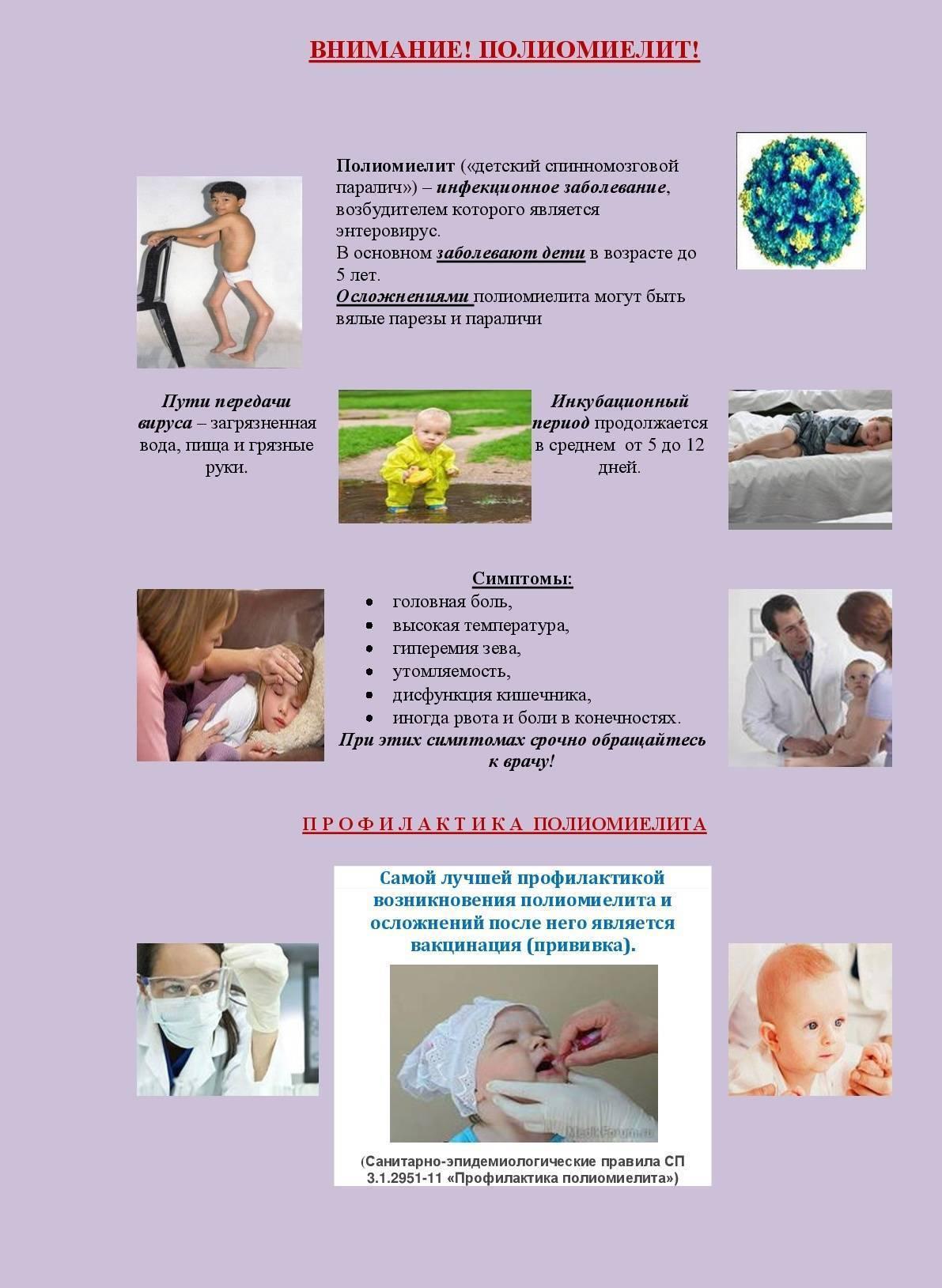 Симптомы полиомиелита у детей и формы заболевания