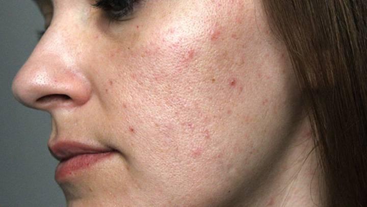 Прыщи на лице у мужчин: причины появления угревой сыпи, лечение, фото
