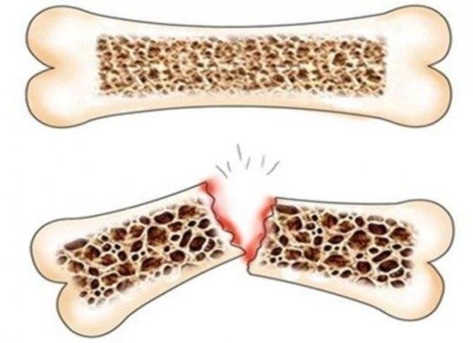 Симптомы и лечение ювенильного остеопороза у детей