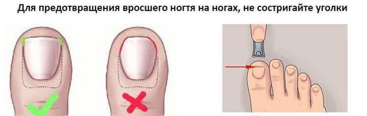 Как правильно стричь ногти на ногах: подготовка, пошаговая инструкция