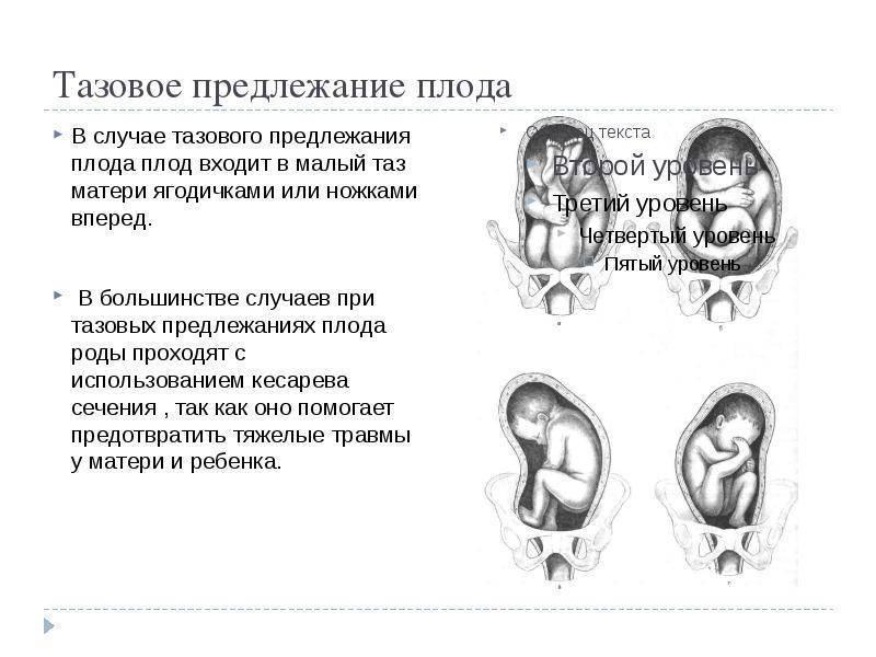 Плюсы и минусы кесарева сечения: последствия для ребенка и осложнения после операции у женщин, чем плохо и опасно для матери, влияние на будущее, отзывы