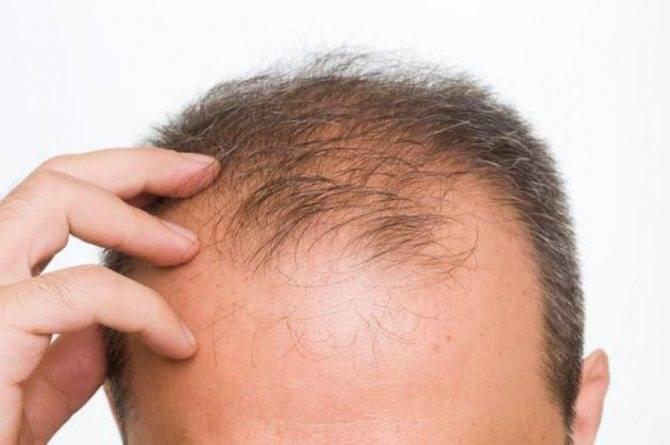 Очаговая алопеция: причины развития лечение выпадения волос