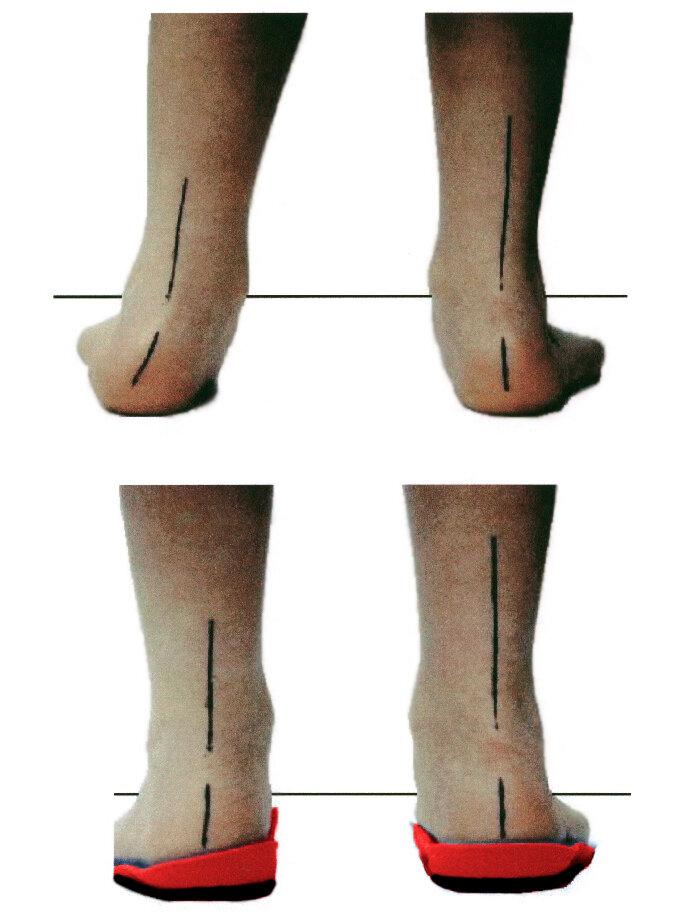 Плоско вальгусная стопа у ребенка (21 фото): лечение деформации ног массажем и лфк, упражнениями и гимнастикой