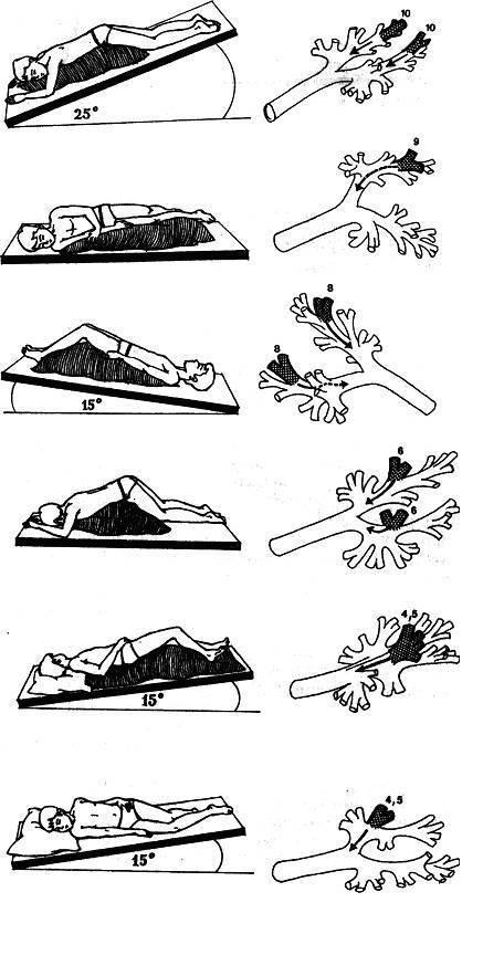 Вибрационный массаж грудничку при кашле
