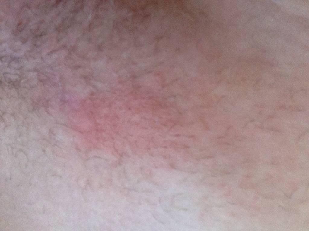 Сыпь в интимной зоне и зуд у мужчин
