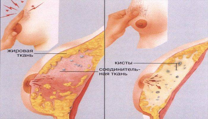 Месячные прошли, а грудь болит: почему после менстрации болят молочные железы