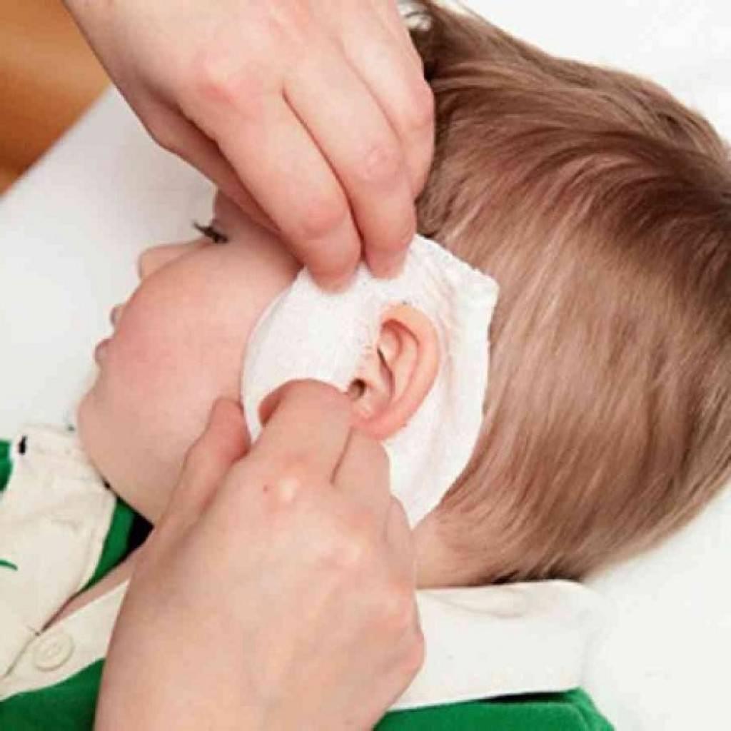 Какой компресс на ухо при отите можно делать ребенку и взрослому?