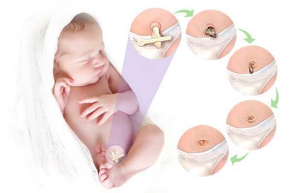 Кровит пупок у новорожденных: что делать и почему так происходит