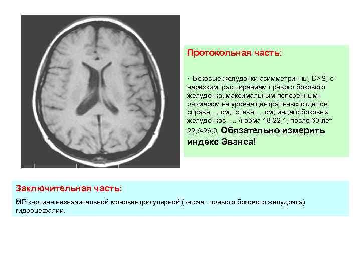 Размеры желудочков мозга у новорожденных. последствия увеличения желудочков головного мозга у новорожденных