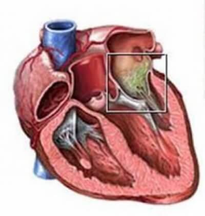 Ребенок жалуется на боли в сердце, ребенок жалуется на боль в области сердца.