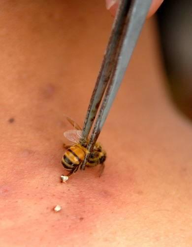 Что делать, при укусах осы или пчелы: первая помощь ребенку в домашних условиях