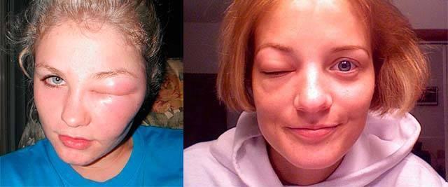 Чем снять отек, если ребенка укусила мошка в глаз