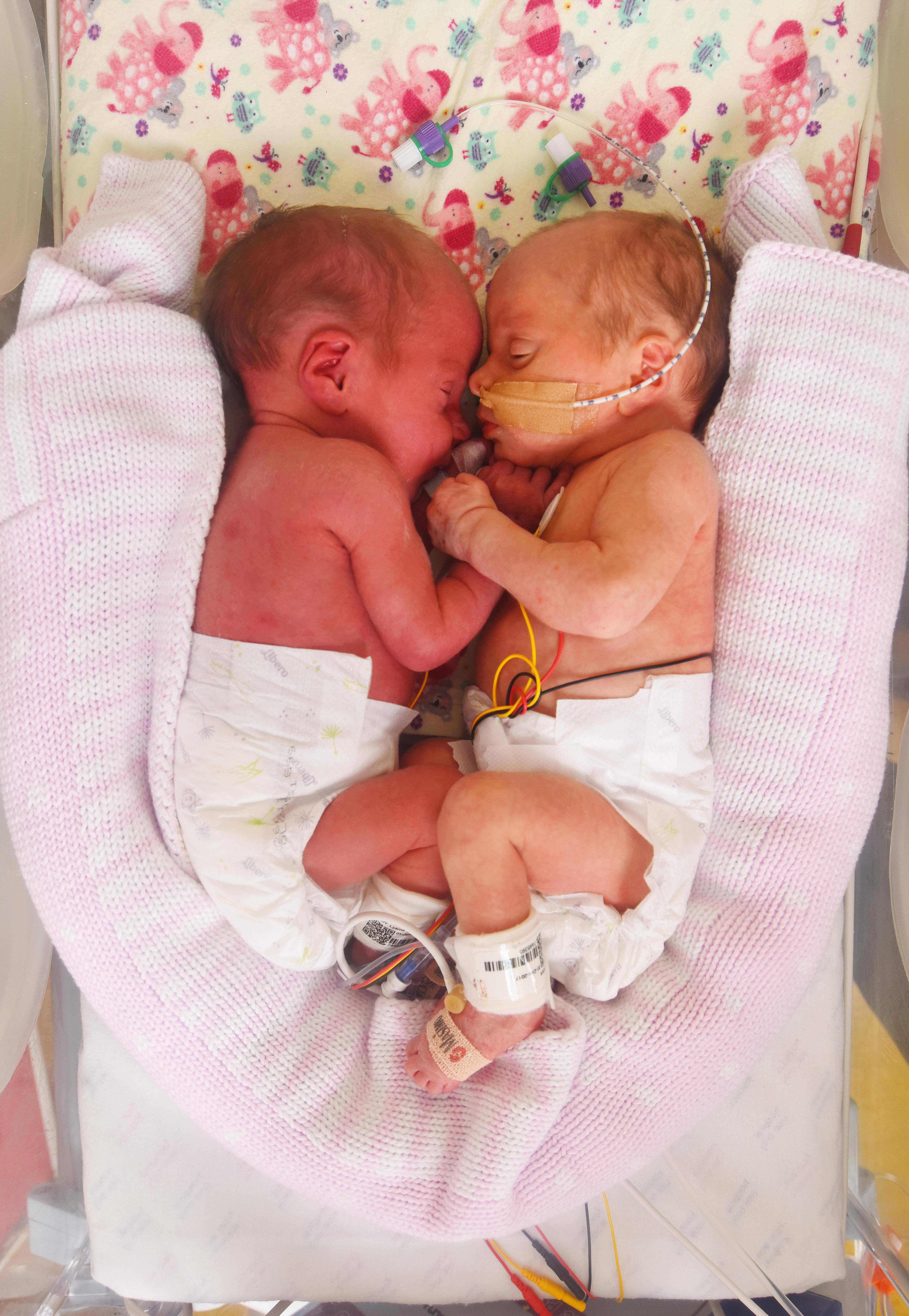 На каком сроке рожают двойню: естественные роды или кесарево сечение?