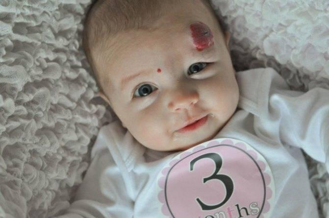 Гемангиома у новорожденных причины возникновения и лечение