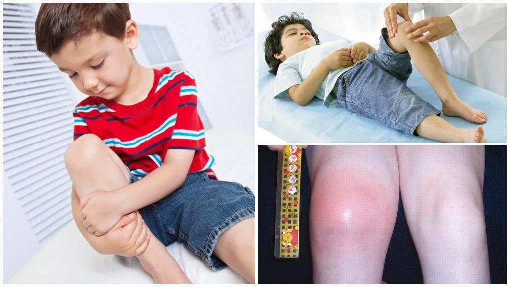 Симптомы и признаки остеопороза у детей