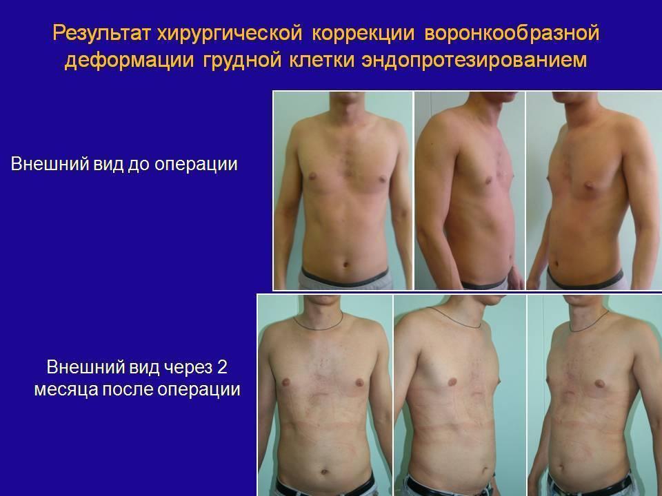 Килевидная грудная клетка (куриная грудь): признаки и лечение