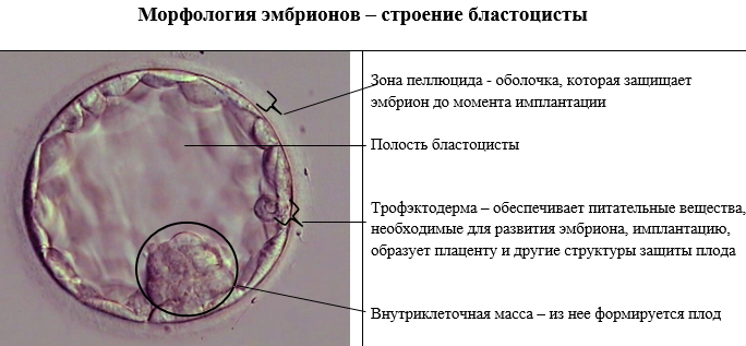 Перенос эмбрионов при эко или как происходит подсадка?
