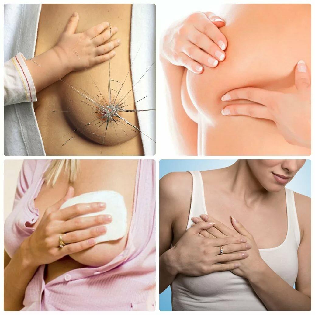 Подтяжка груди после родов и грудного вскармливания: комплекс мер, помогающий подтянуть грудь