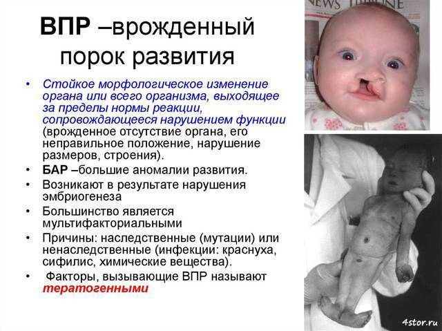 Проблемы во время беременности: задержка развития плода