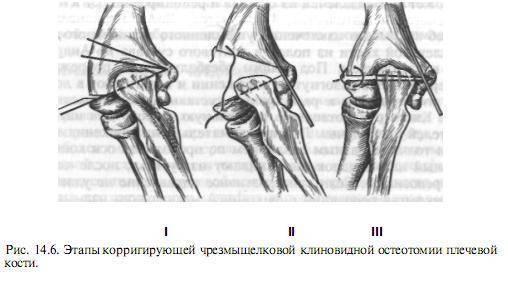 Чрезмыщелковый перелом плечевой кости у детей и взрослых