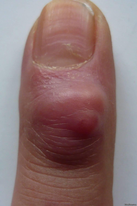 Как лечить нарыв на пальце возле ногтя ноги и руки: эффективные способы