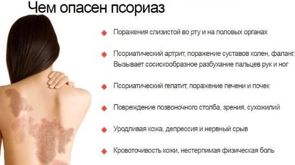 Лечение псориаза начальной стадии, причины и признаки болезни