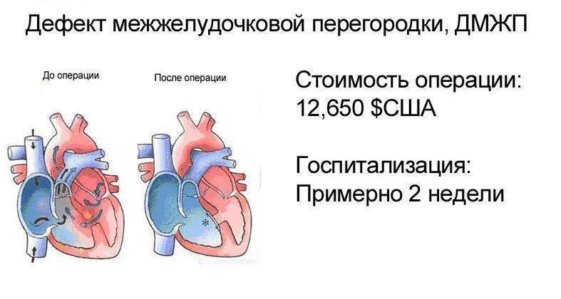 Дефекты межжелудочковой перегородки в сердце у новорожденного ребенка: операция и лечение впс дмжп