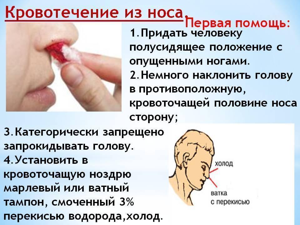 Почему у ребенка идет кровь из носа, первая помощь, лечение