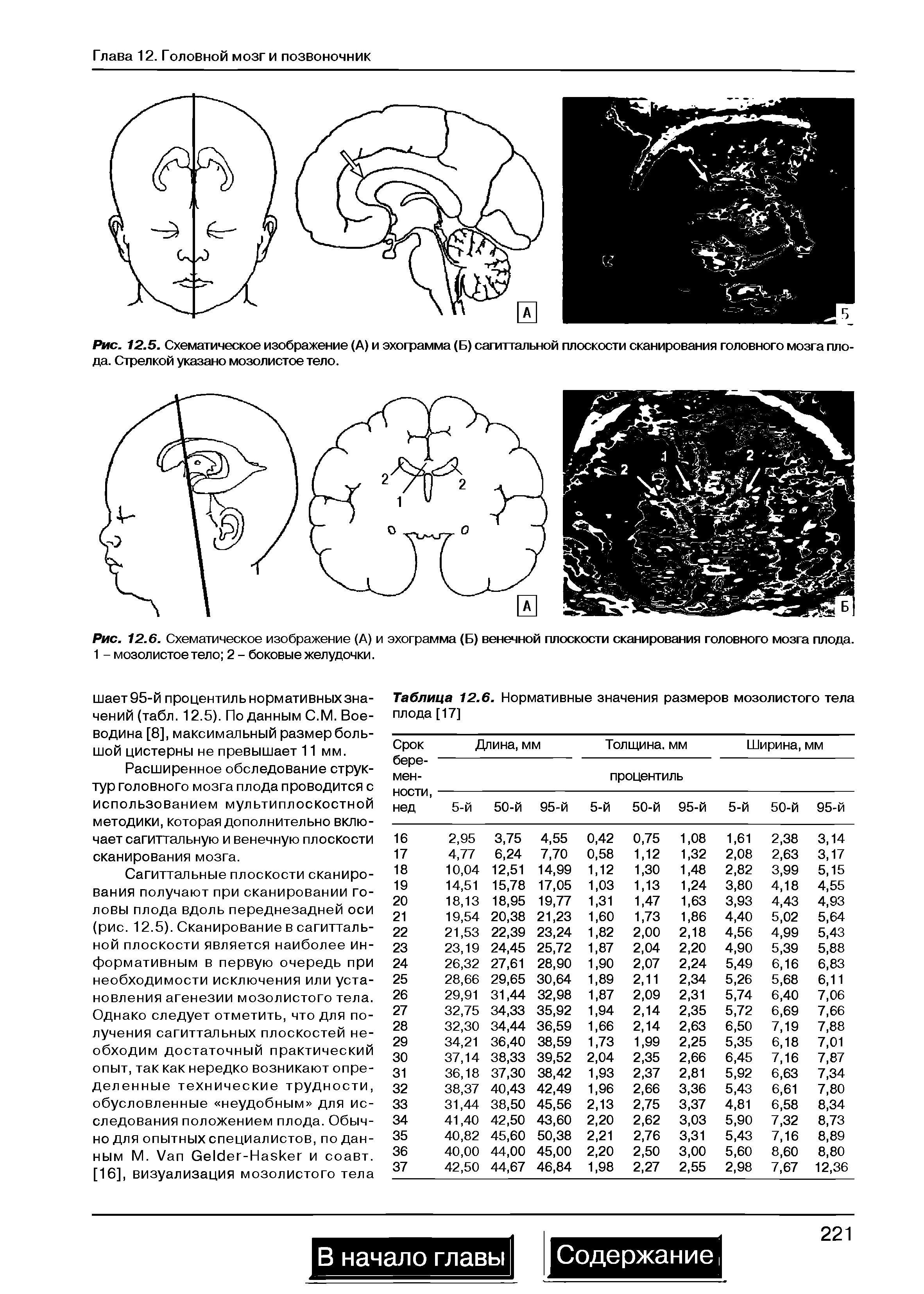 Норма размеры желудочков головного мозга у взрослых норма