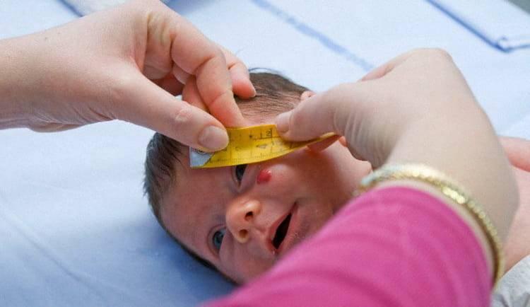 Гемангиома у новорожденного