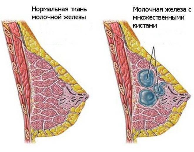 Болит грудь перед месячными – должна ли, когда начинает болеть? почему болит грудь перед месячными сильно?