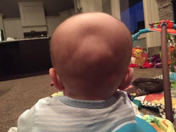 Каким должен быть и когда зарастает родничок у новорожденных