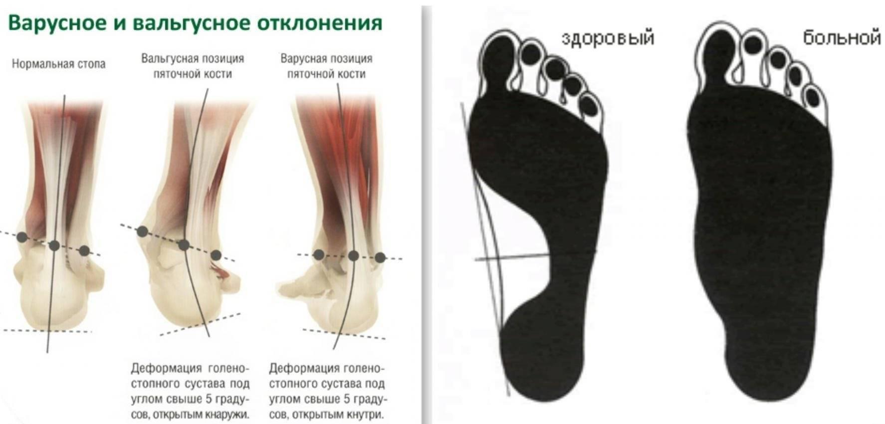 Варусная деформация стопы у детей и взрослых: лечение, массаж нижних конечностей